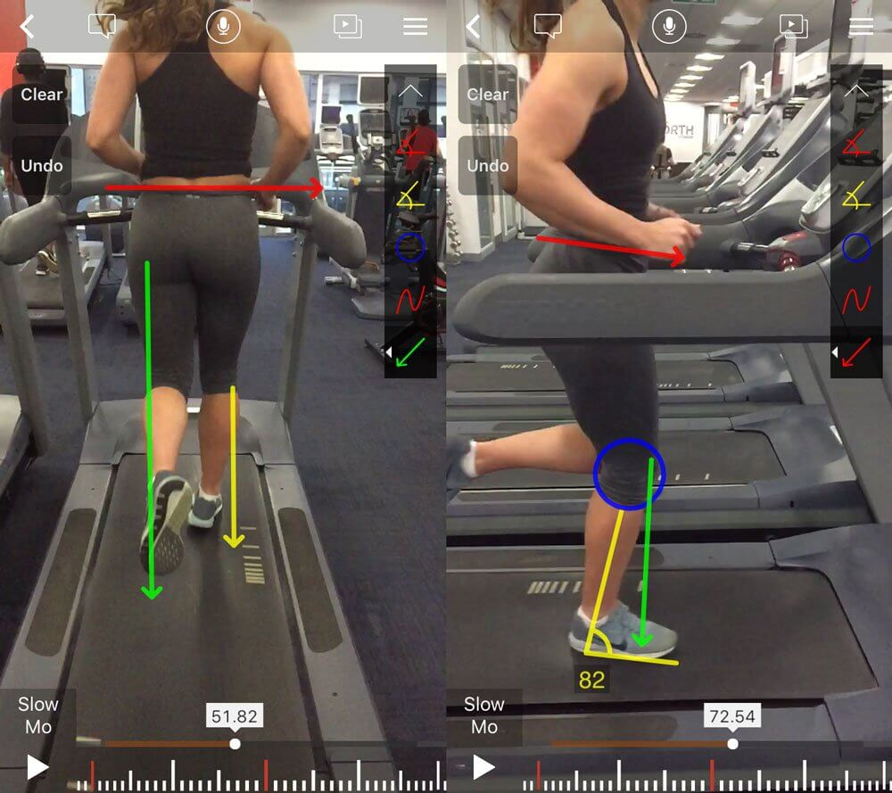 north sport physio - running screening