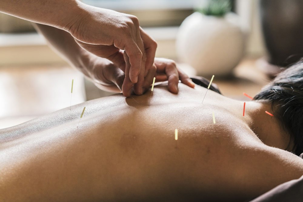 north sport physio - MSK Acupuncture
