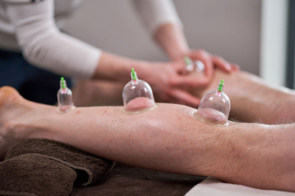 north sport physio - cupping