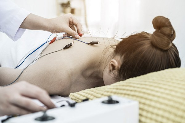 north sport physio - Electroacupuncture